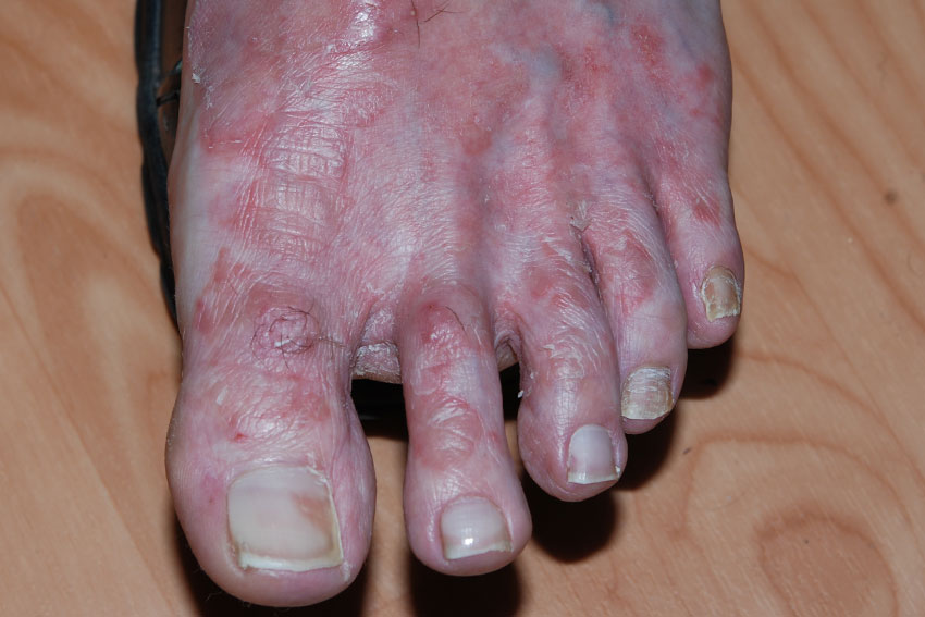 Skin Mycosis And Fungal Nail Infection