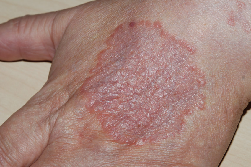 Erythema | definition of erythema by Medical dictionary