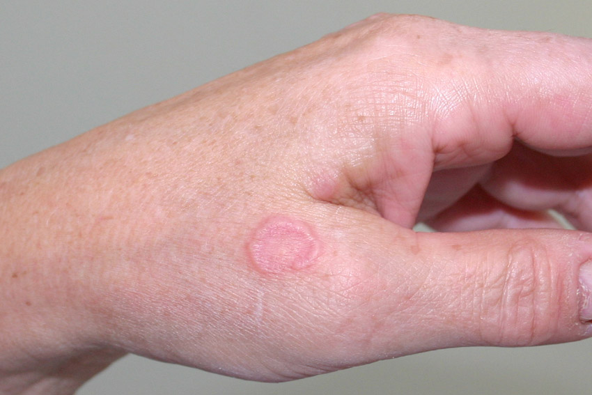 granuloma annulare on the hand