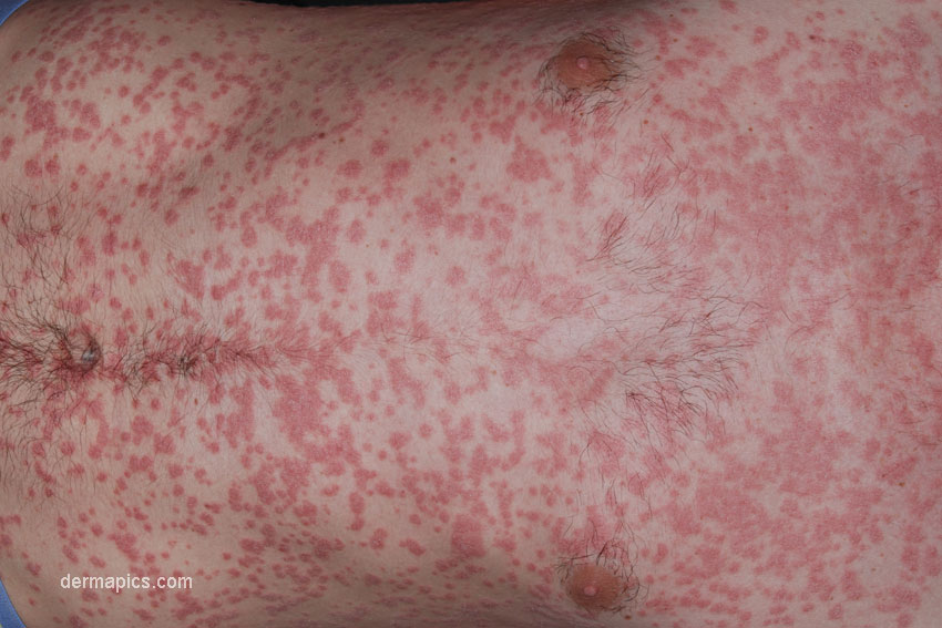 guttate psoriasis: pictures and clinical information, Skeleton