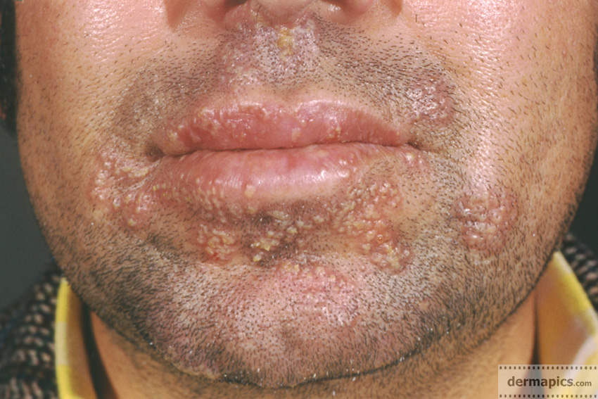Herpes Simplex In The Face Around The Mouth