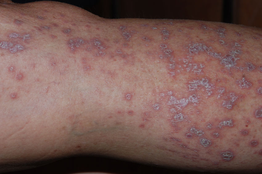 Lichen planus: MedlinePlus Medical Encyclopedia