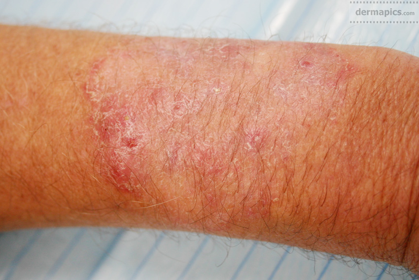fungal infection of                         the skin of the arm