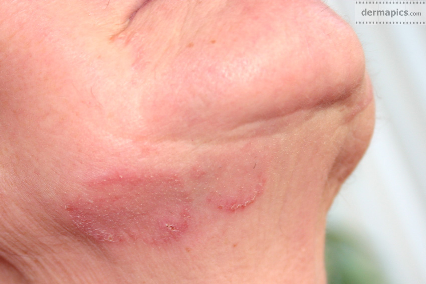 Facial Fungal Rash 39
