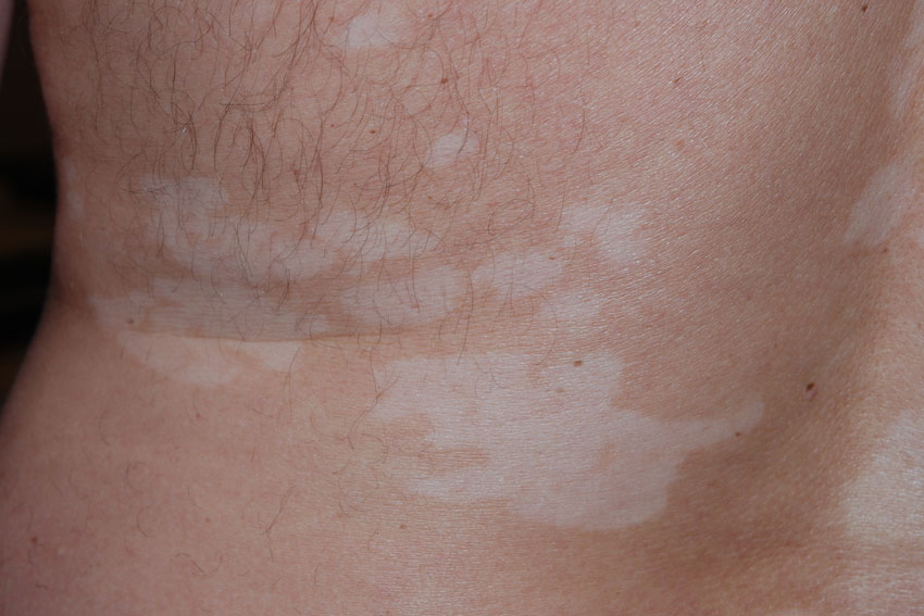 Vitiligo Pictures And Clinical Information