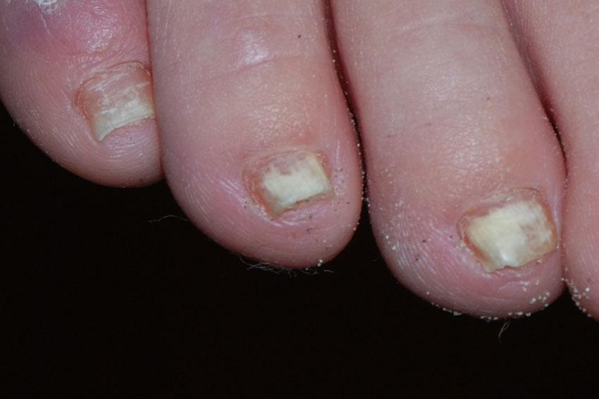 candida parapsilosis nail treatment