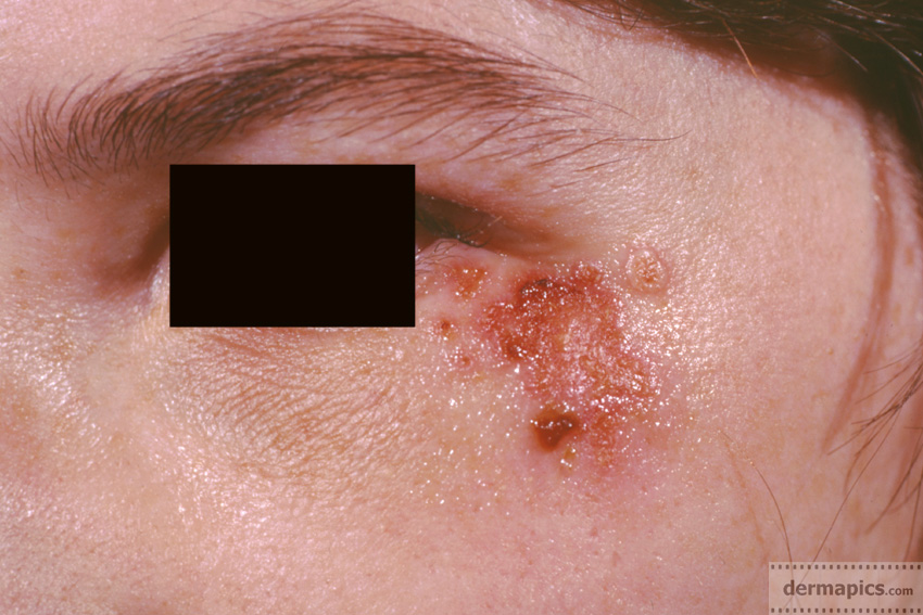 herpes virus eye infection picture detail
